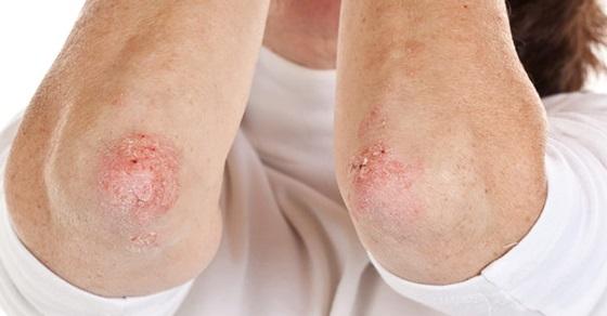ce este dermatita seboreica scalpel